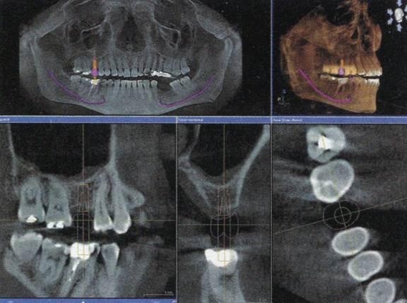 Teeth Xrays